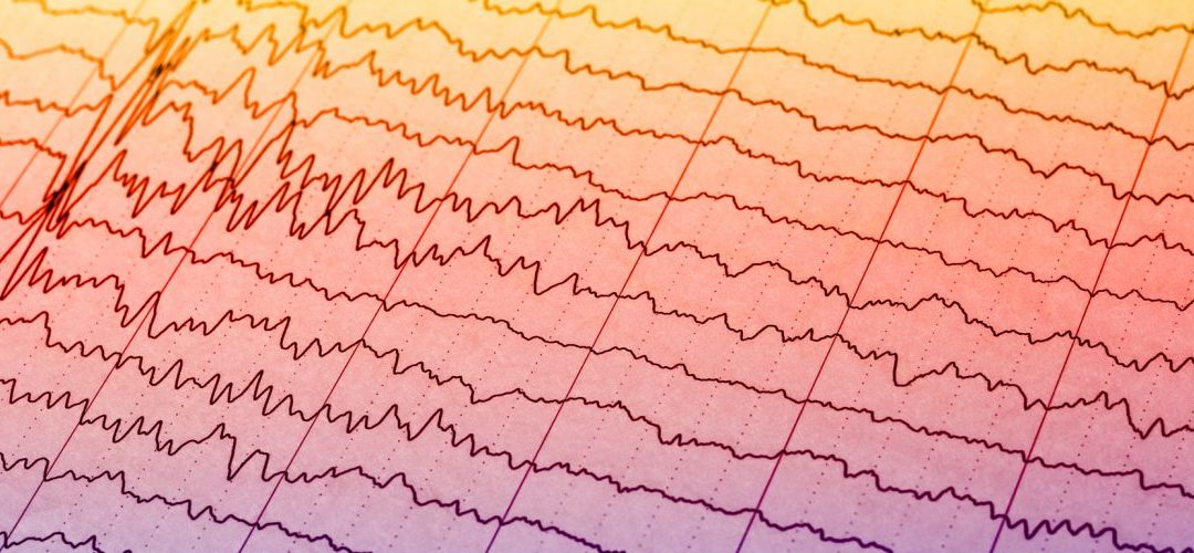 What if my EEG is abnormal?
